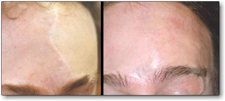 91060c87c Permanent Makeup For Scars – Saubhaya Makeup